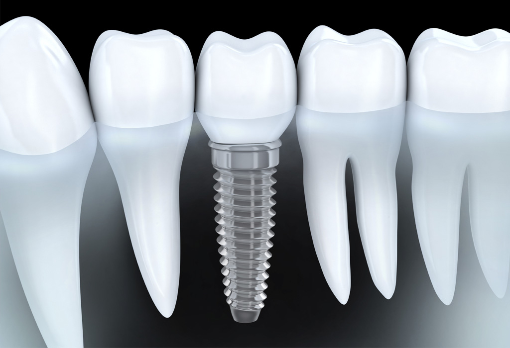 implants dentals Lleida