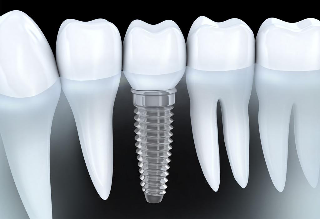 implants dentals Lleida
