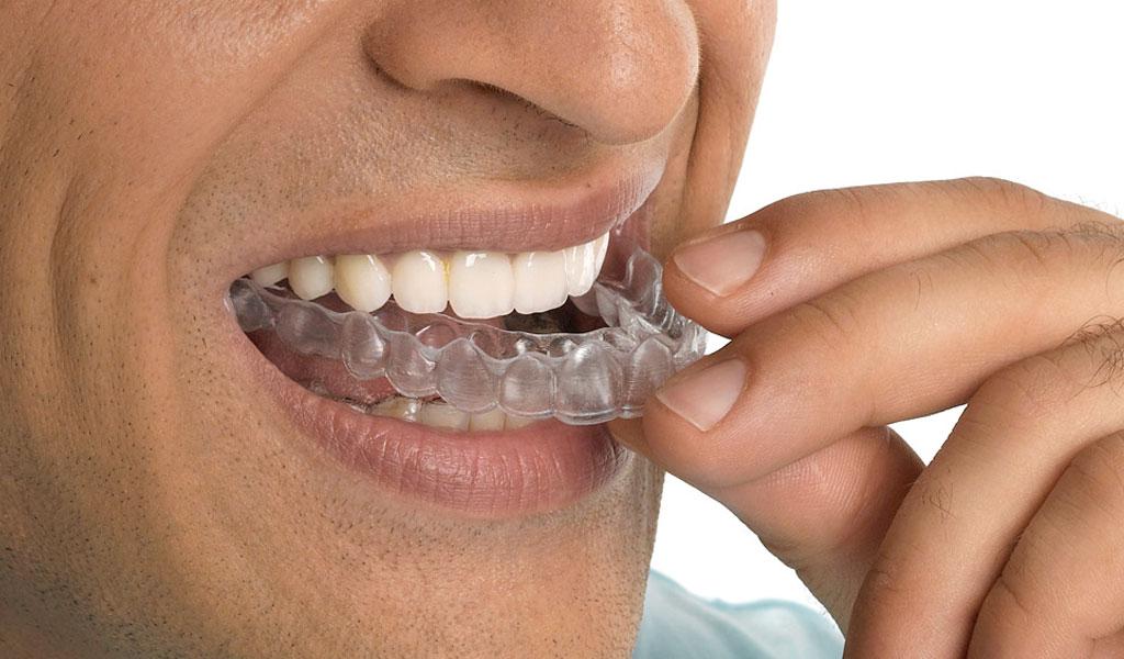 ortodoncia en Lleida